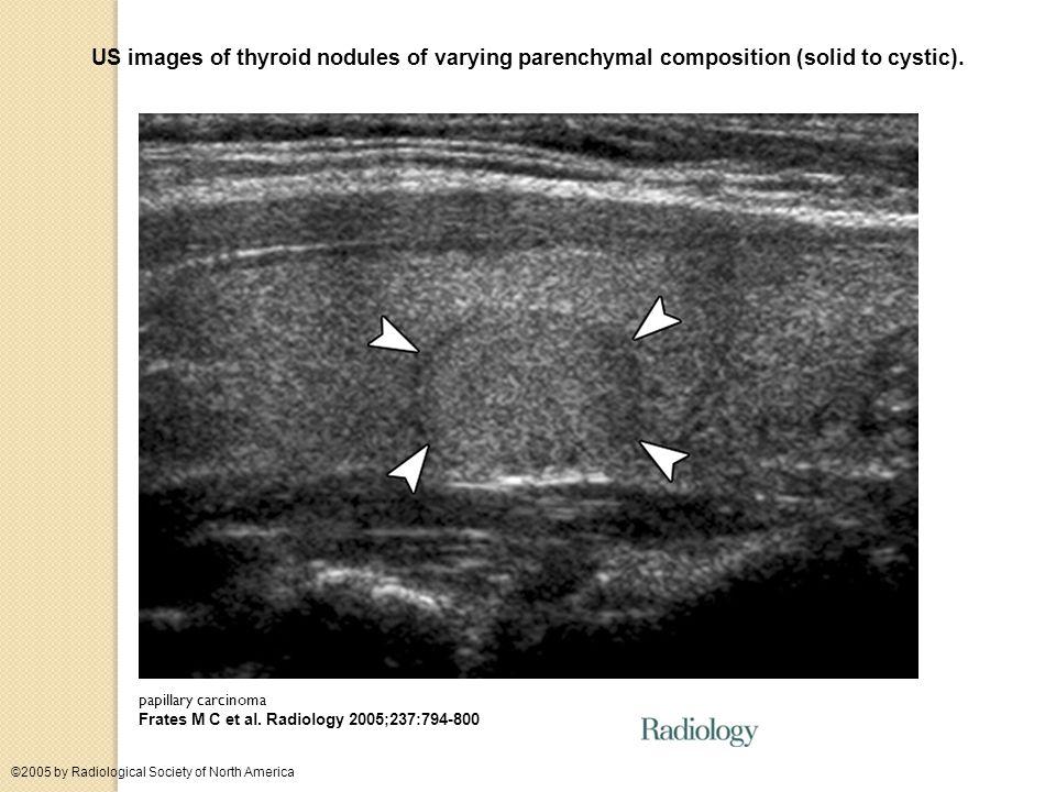 Punctate echogenicities in thyroid nodules.colloid crystals in a benign nodule Frates M C et al.