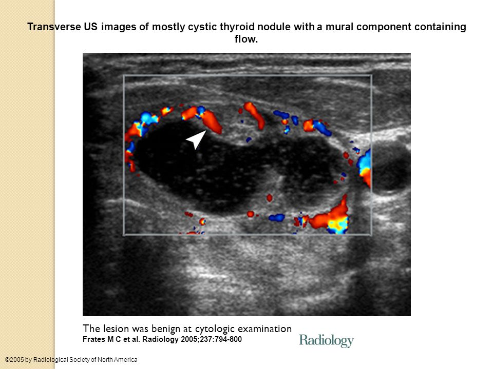 Transverse US images of mostly cystic thyroid nodule with a mural component containing flow.