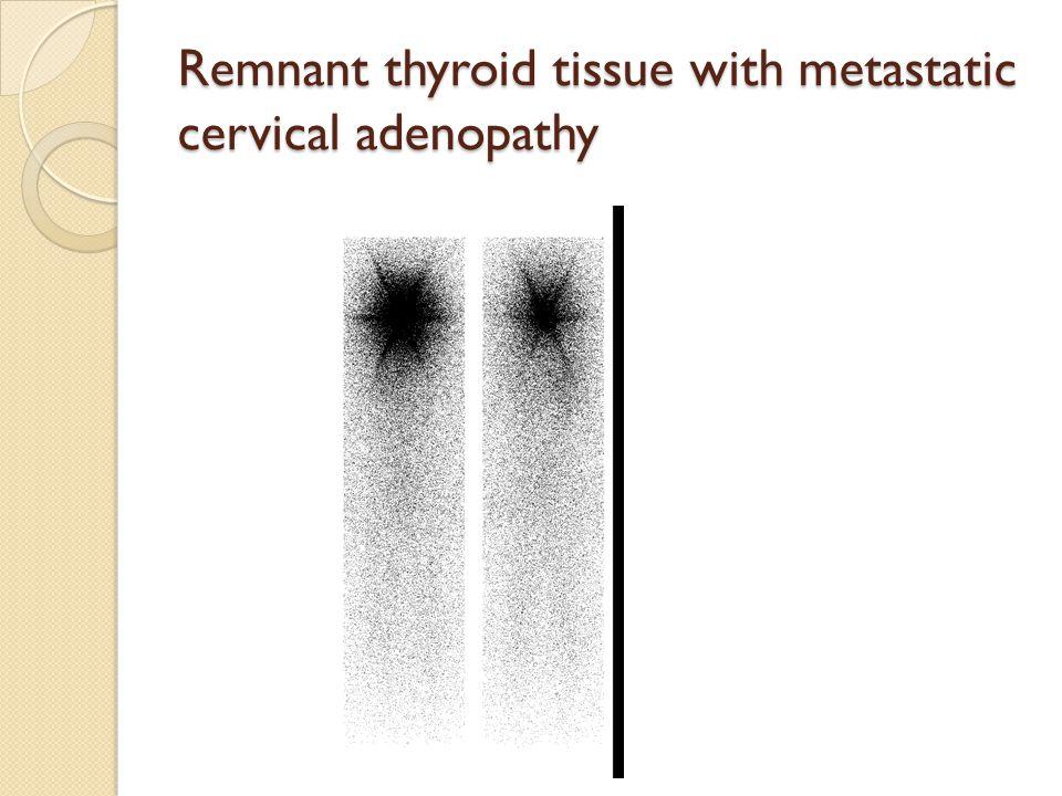 Remnant thyroid tissue