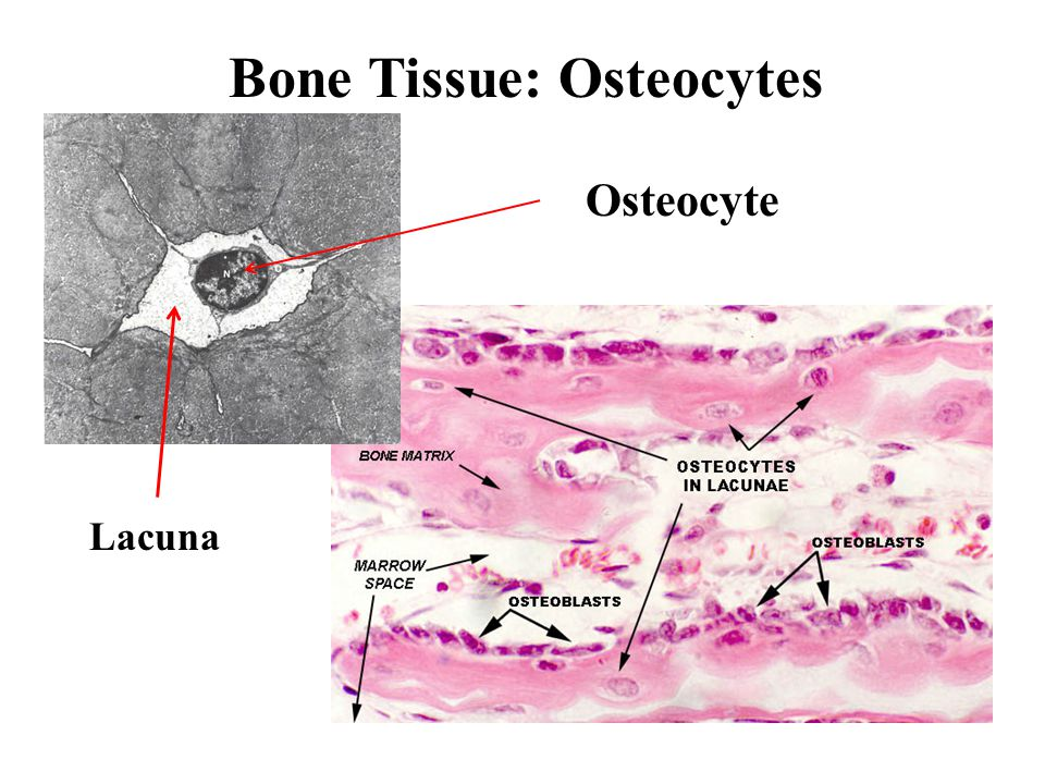 Pneumatic Bones Proctor and Lynch 1993 (p. 136)