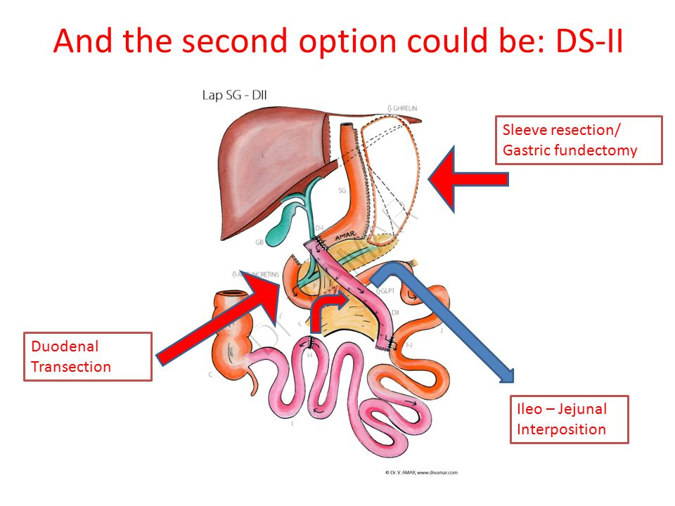 And the second option could be: DS-II Sleeve resection/ Gastric fundectomy Duodenal Transection Ileo – Jejunal Interposition