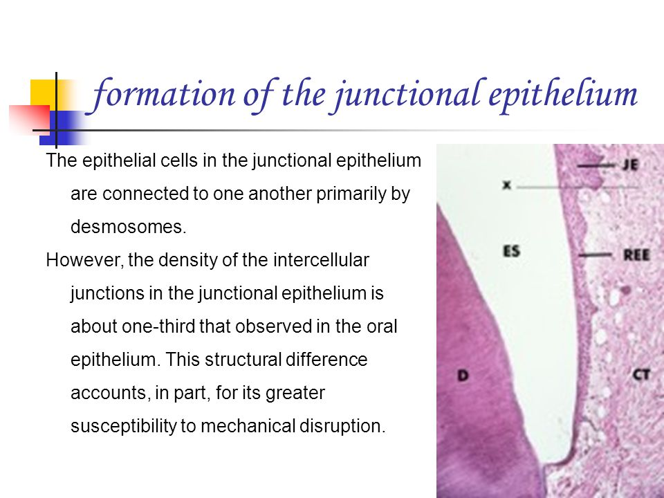 formation of the junctional epithelium The epithelial cells in the junctional epithelium are connected to one another primarily by desmosomes. However