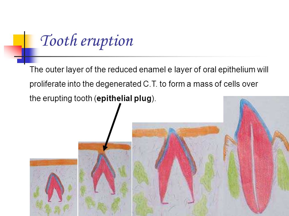 Tooth eruption The outer layer of the reduced enamel e layer of oral epithelium will proliferate into the degenerated C.T. to form a mass of cells ove