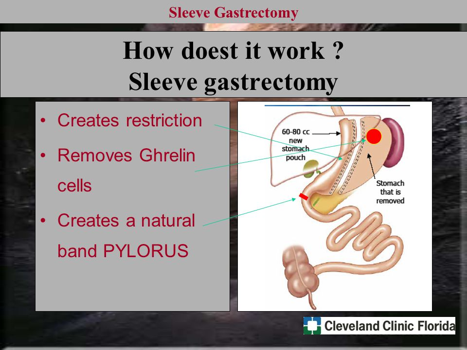 Sleeve Gastrectomy How doest it work ? Sleeve gastrectomy Creates restriction Removes Ghrelin cells Creates a natural band PYLORUS
