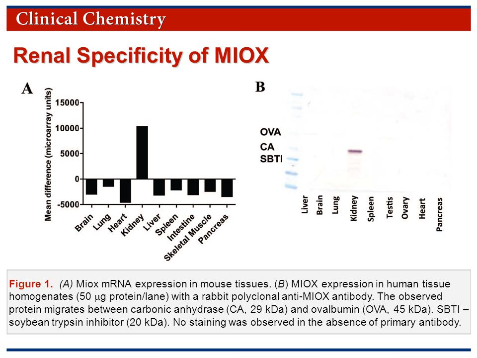 © Copyright 2009 by the American Association for Clinical Chemistry Figure 1. (A) Miox mRNA expression in mouse tissues. (B) MIOX expression in human