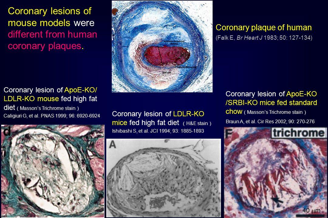 Coronary plaque of human (Falk E, Br Heart J 1983; 50: 127-134) Coronary lesion of ApoE-KO/ LDLR-KO mouse fed high fat diet ( Masson's Trichrome stain ) Caligiuri G, et al.