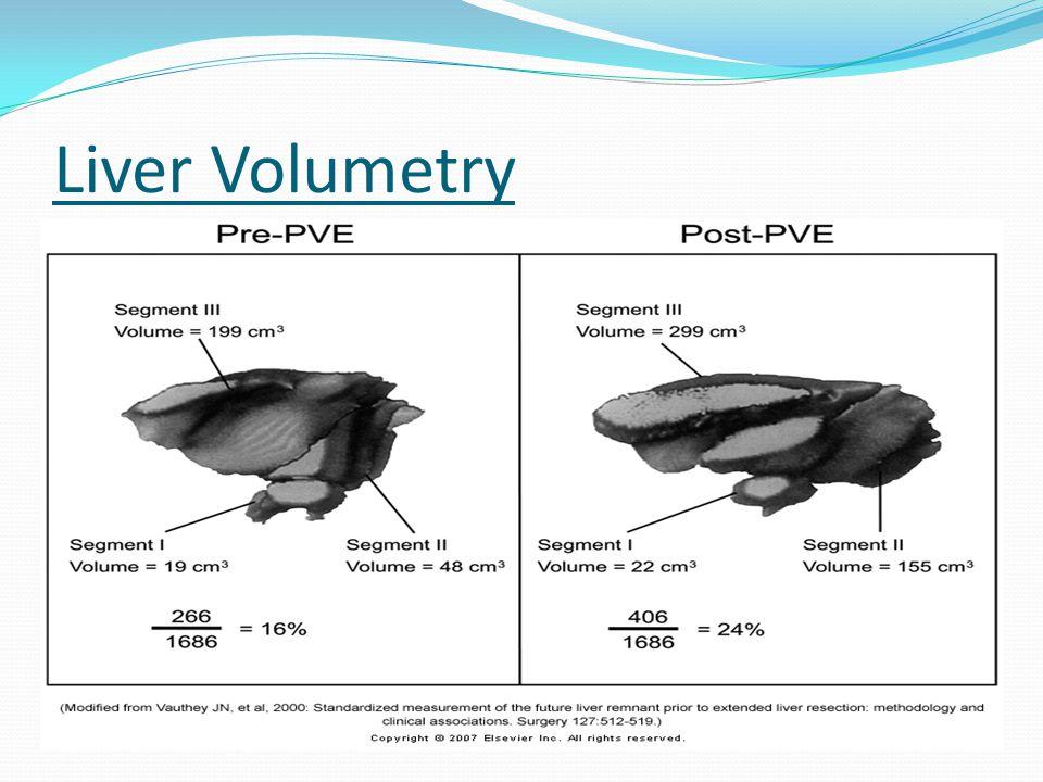 Liver Volumetry