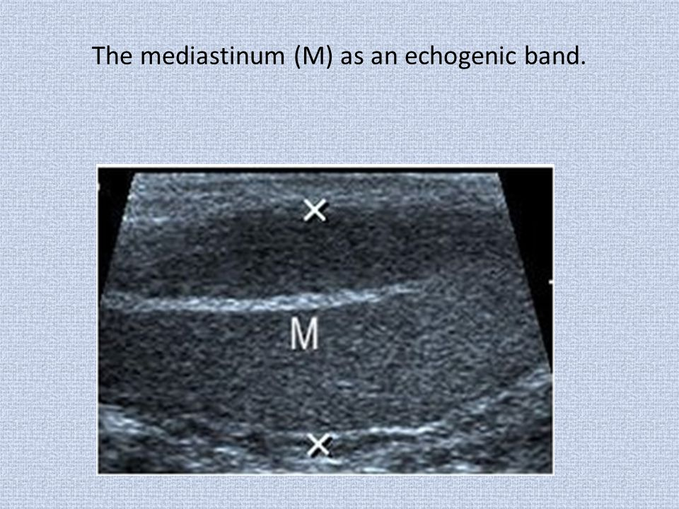 The mediastinum (M) as an echogenic band.