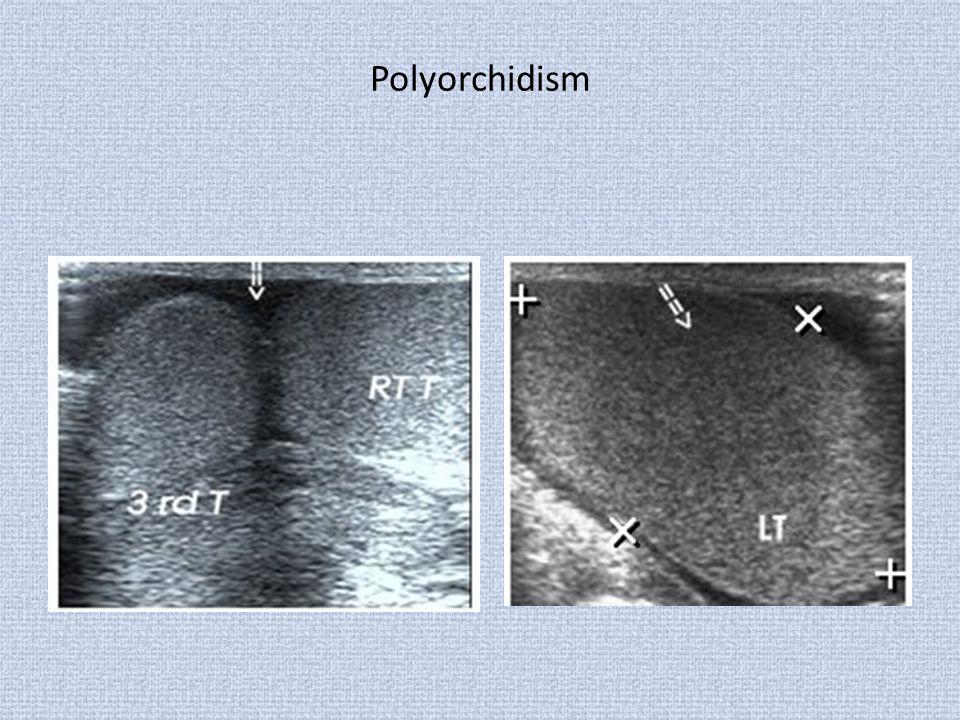 Polyorchidism
