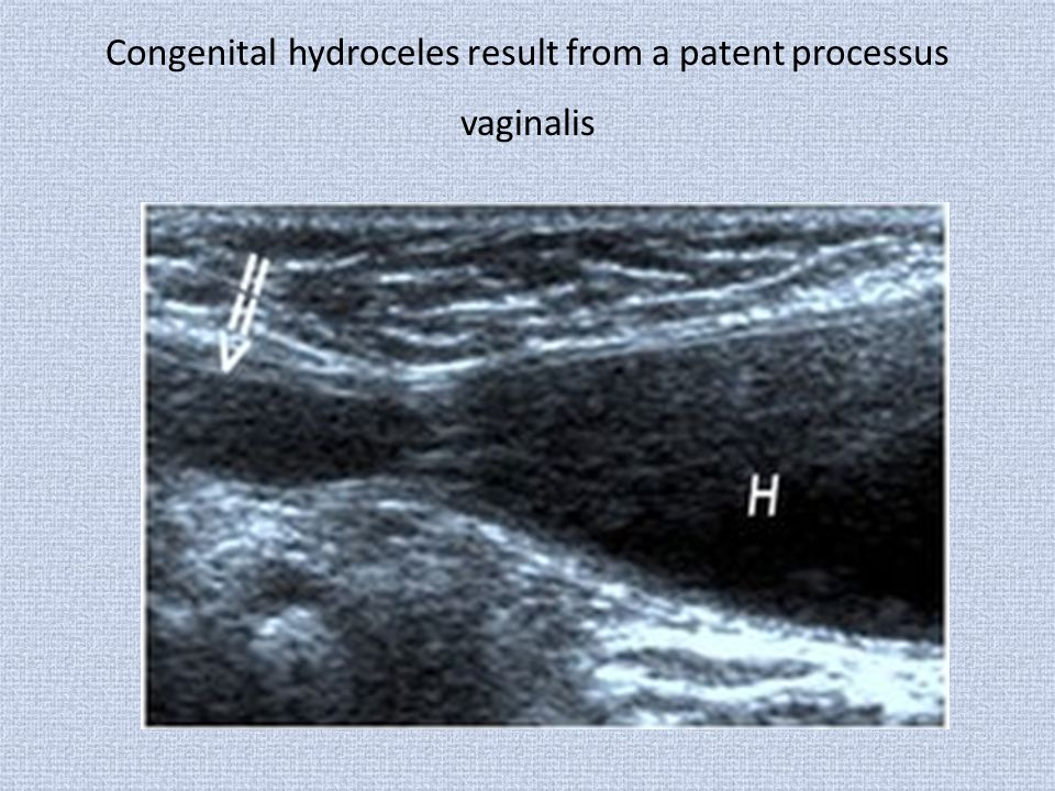 Congenital hydroceles result from a patent processus vaginalis