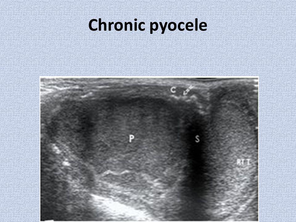 Chronic pyocele