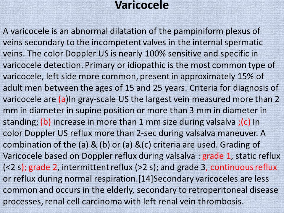 Varicocele A varicocele is an abnormal dilatation of the pampiniform plexus of veins secondary to the incompetent valves in the internal spermatic vei