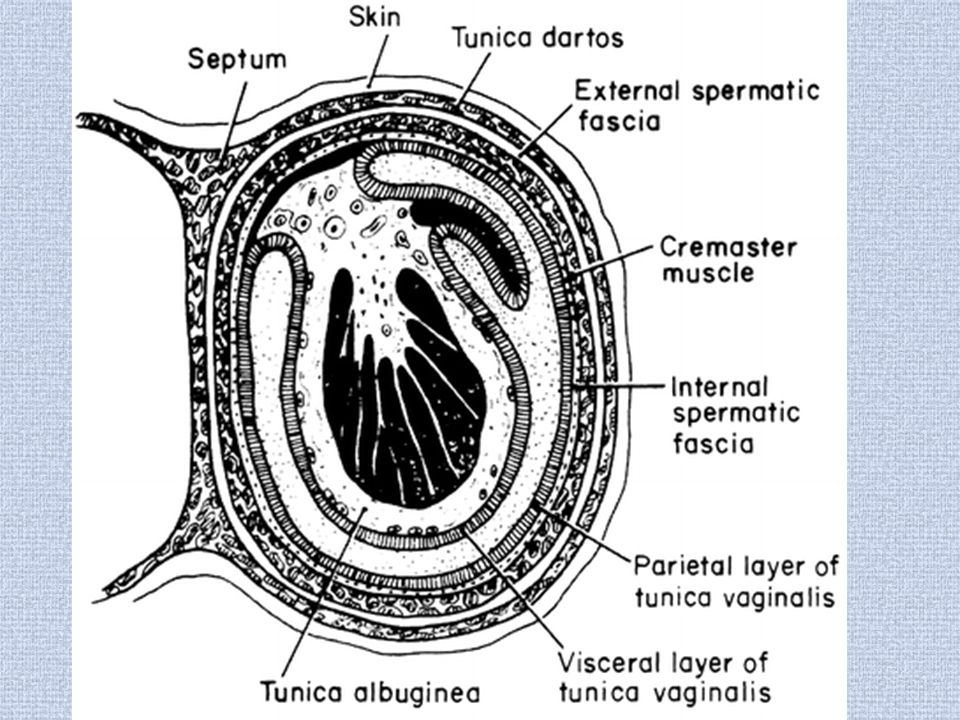 Testicular Macrocalcification. Chronic epididymo orchitis
