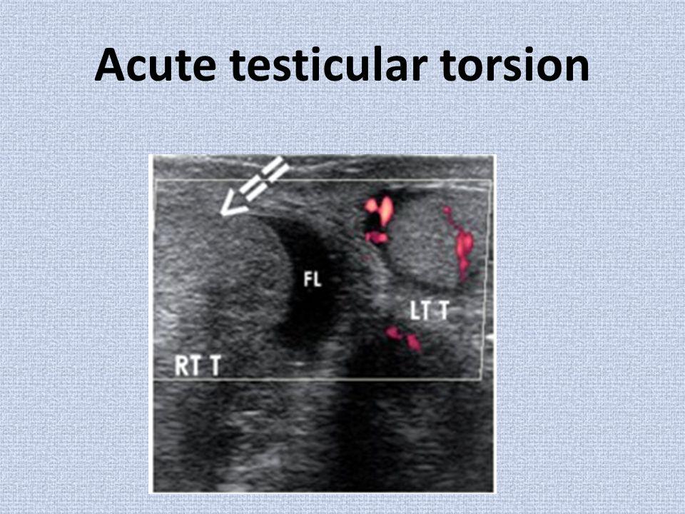 Acute testicular torsion