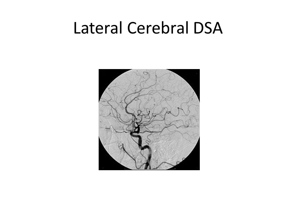 Lateral Cerebral DSA