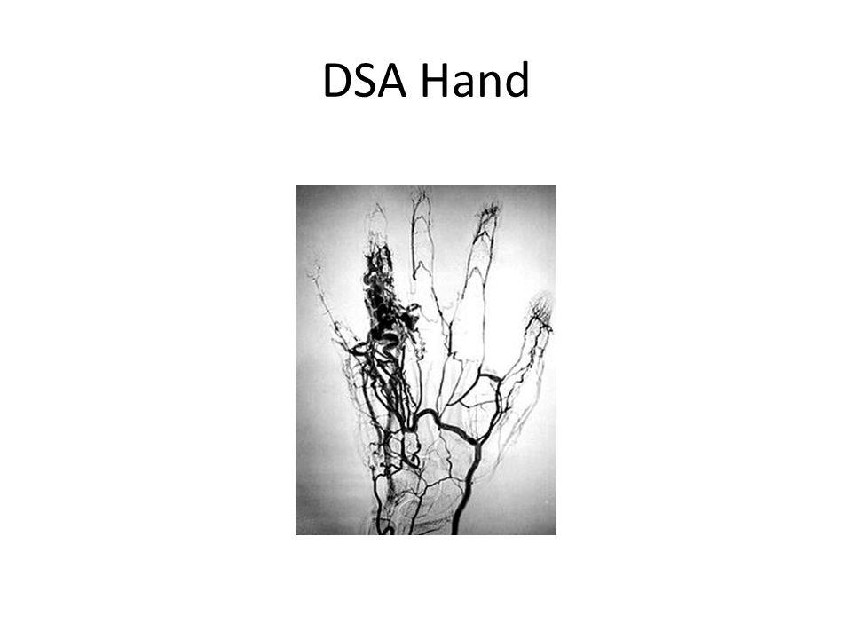 DSA Hand