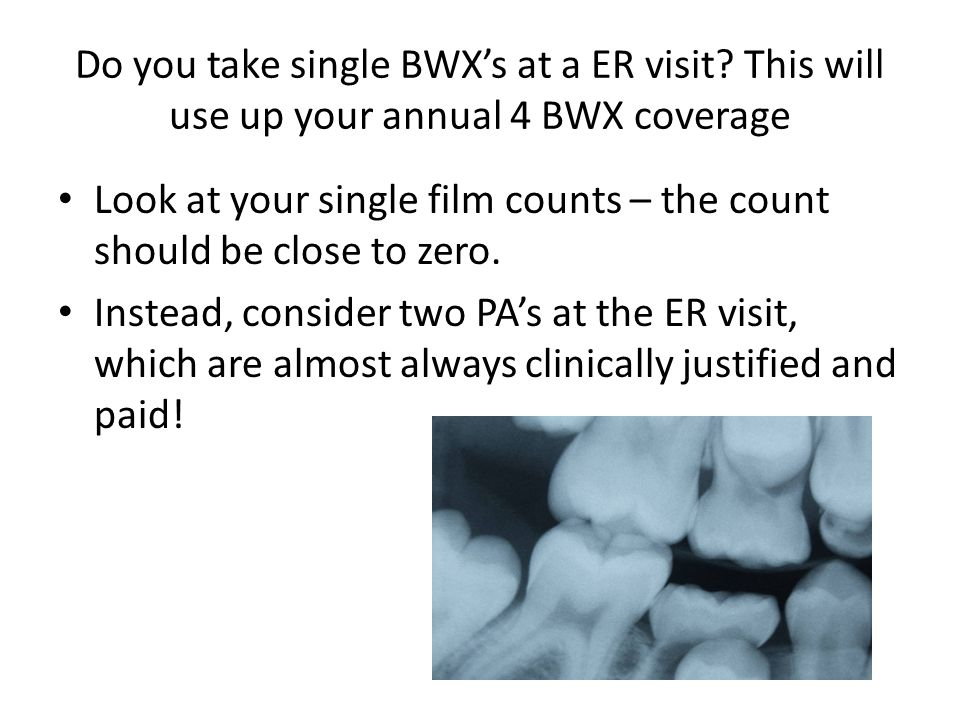 Do you take single BWX's at a ER visit? This will use up your annual 4 BWX coverage Look at your single film counts – the count should be close to zer