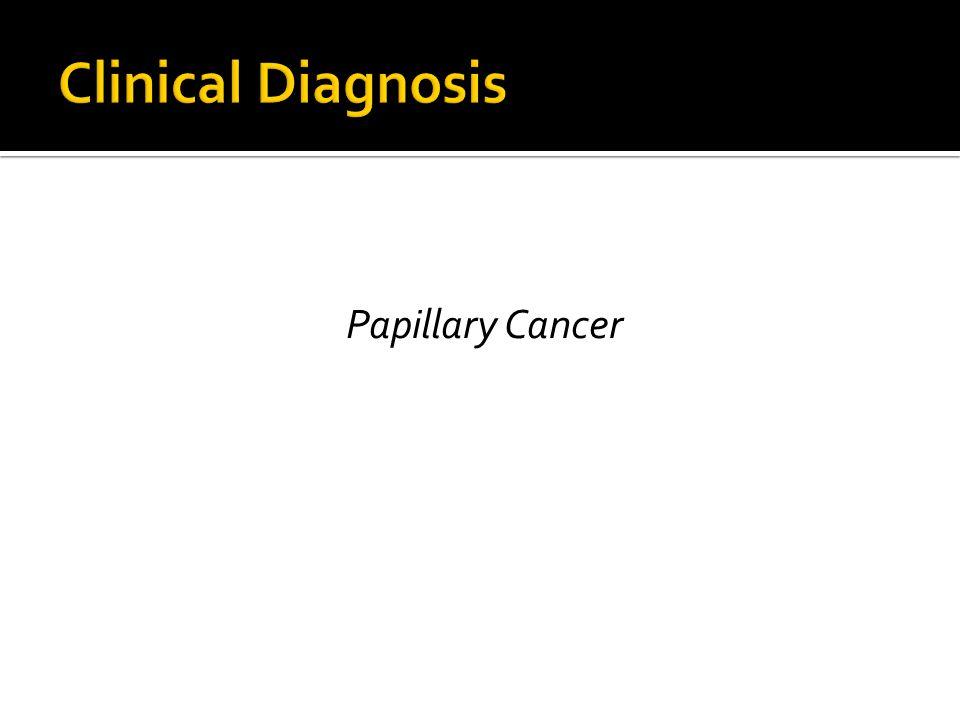 Papillary Cancer