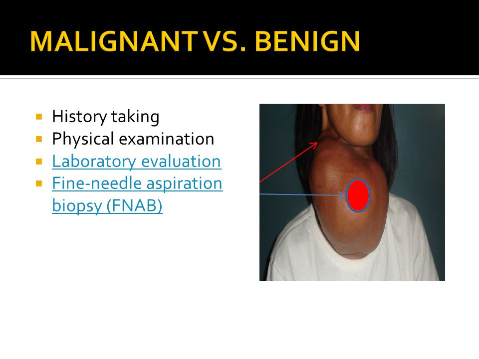 HHistory taking PPhysical examination LLaboratory evaluation FFine-needle aspiration biopsy (FNAB)