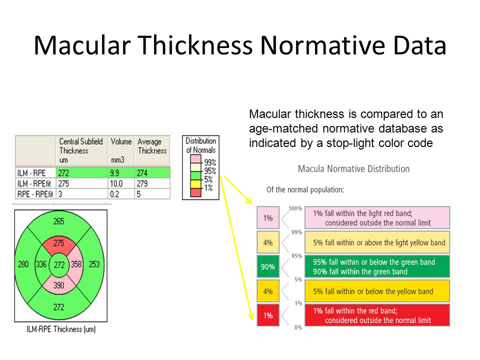 Macular Thickness Normative Data Macular thickness is compared to an age-matched normative database as indicated by a stop-light color code
