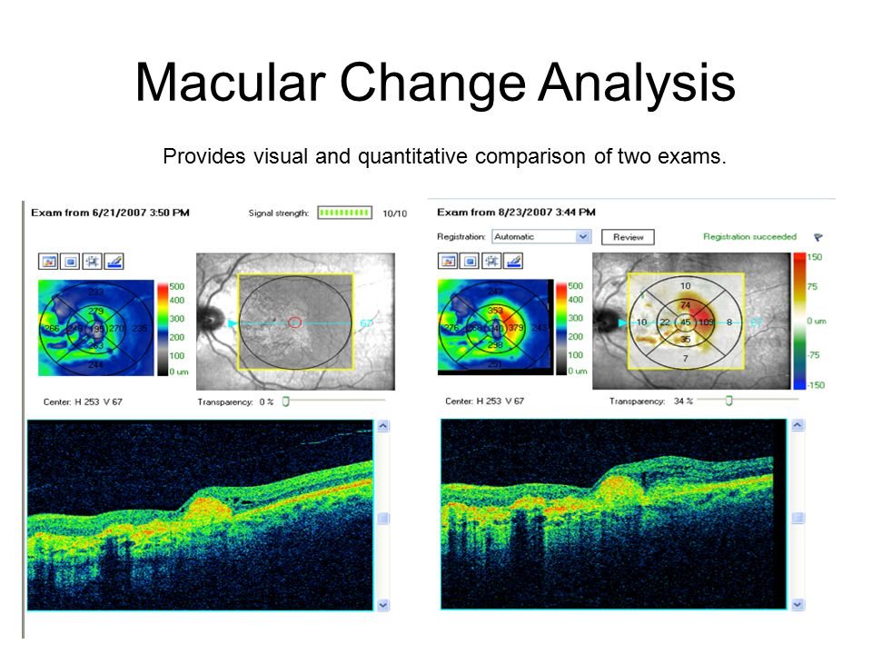 Macular Change Analysis Provides visual and quantitative comparison of two exams.