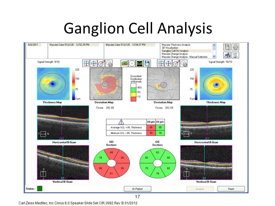 Ganglion Cell Analysis 17 Carl Zeiss Meditec, Inc Cirrus 6.0 Speaker Slide Set CIR.3992 Rev B 01/2012