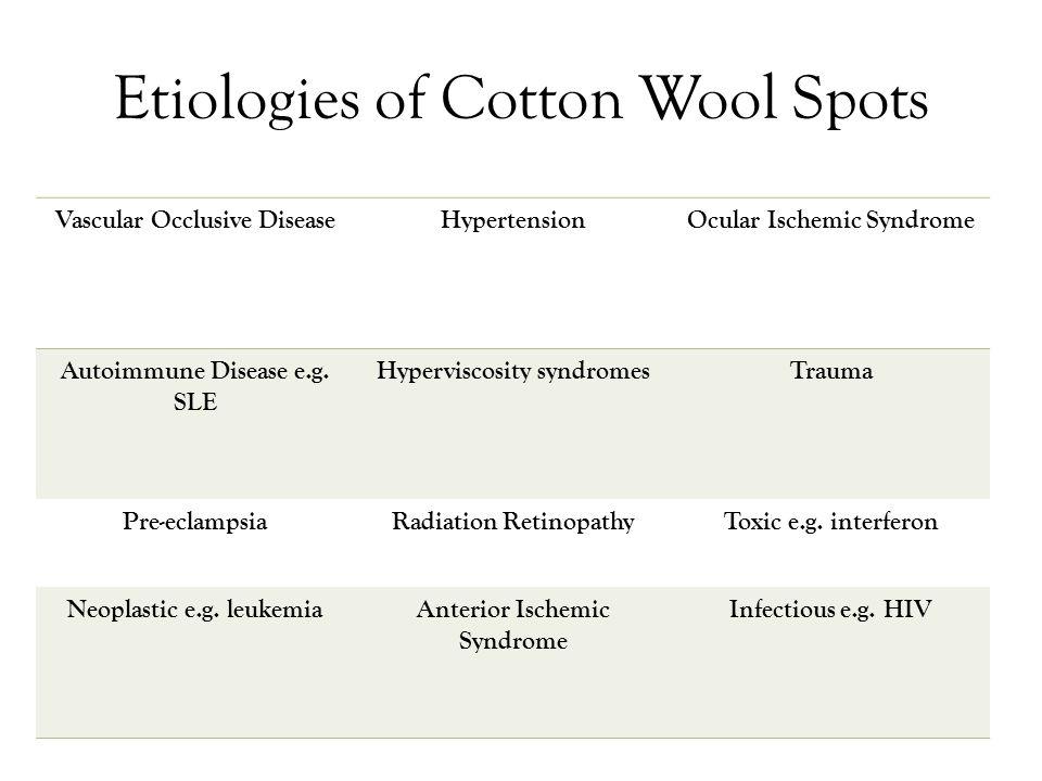 Etiologies of Cotton Wool Spots Vascular Occlusive DiseaseHypertensionOcular Ischemic Syndrome Autoimmune Disease e.g.