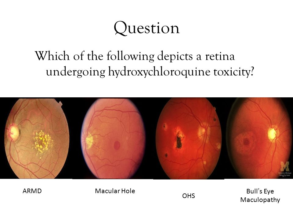 Question Which of the following depicts a retina undergoing hydroxychloroquine toxicity.