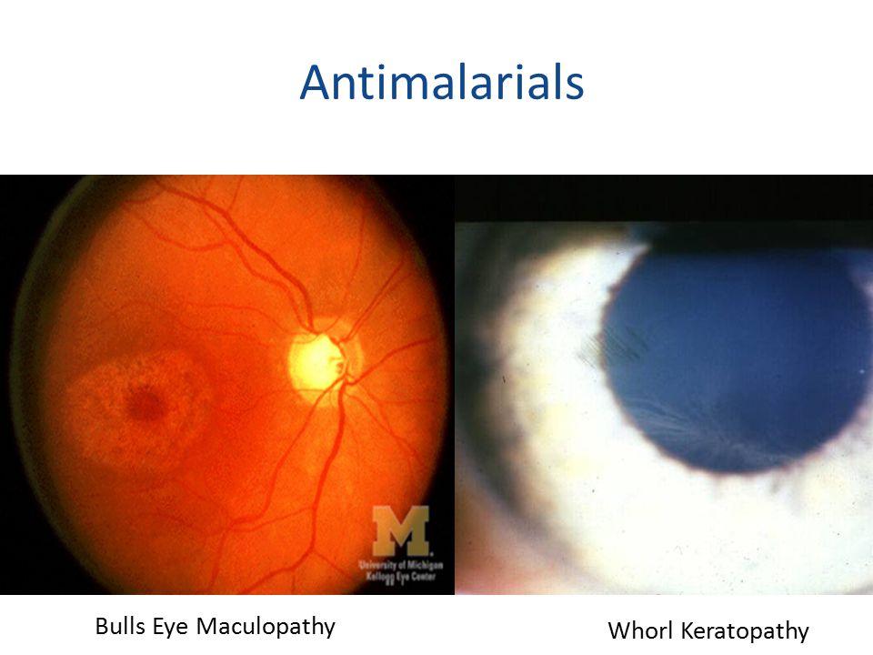 Antimalarials 29 Bulls Eye Maculopathy Whorl Keratopathy