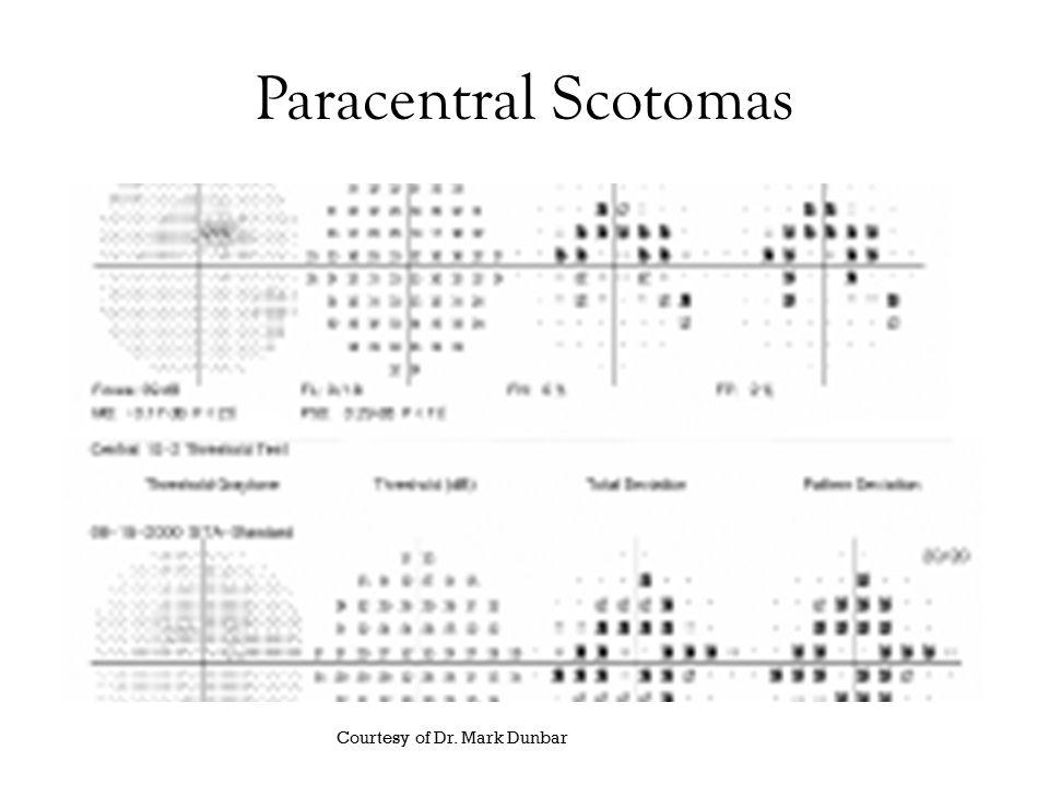 Paracentral Scotomas Courtesy of Dr. Mark Dunbar