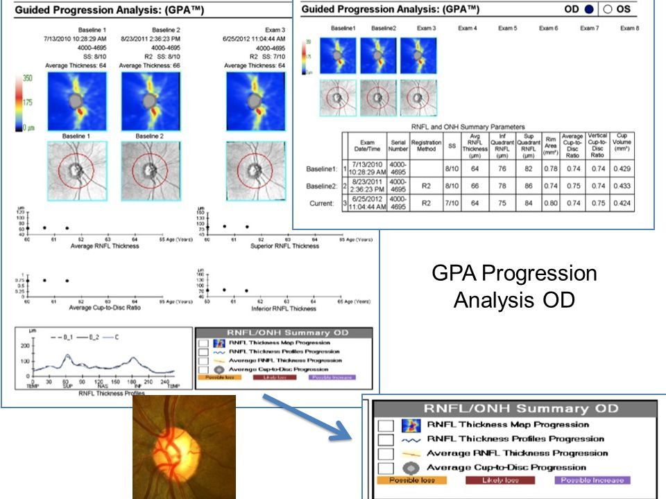 GPA Progression Analysis OD