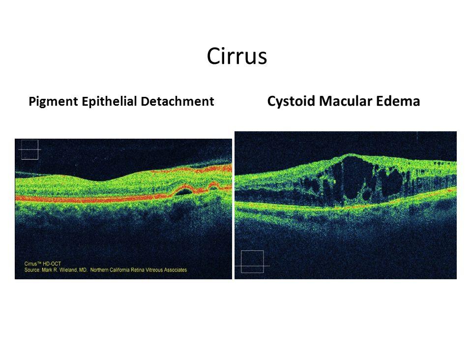 Cirrus Pigment Epithelial Detachment Cystoid Macular Edema