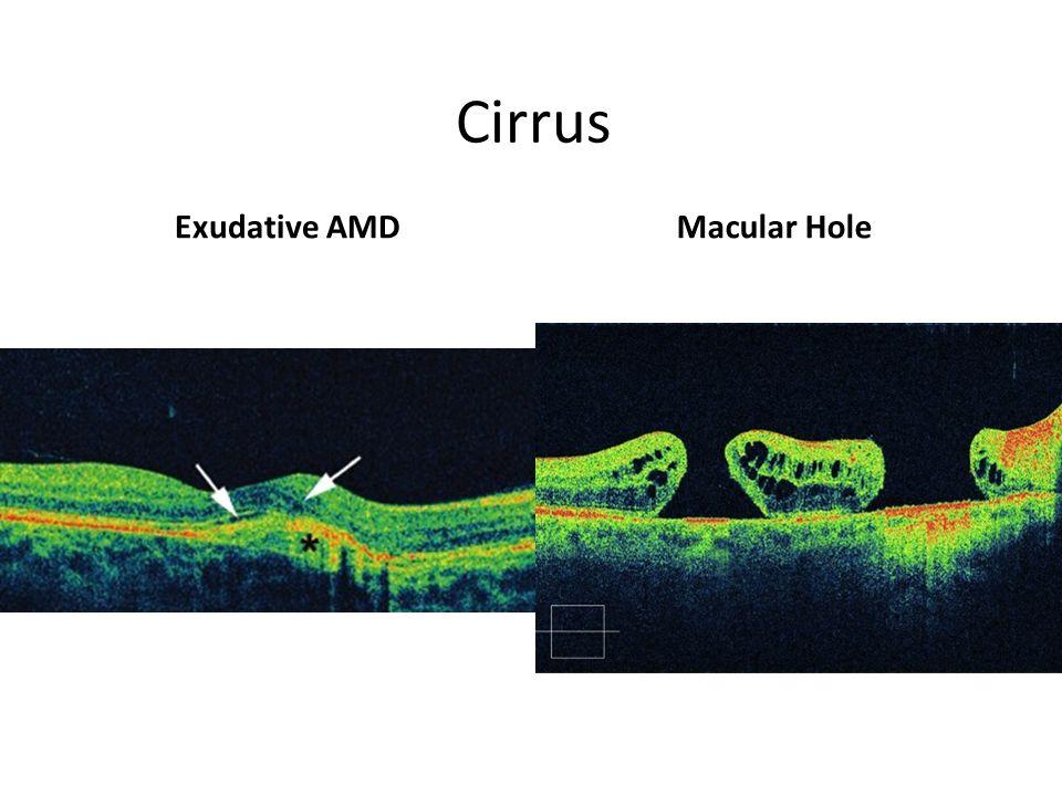 Cirrus Exudative AMDMacular Hole