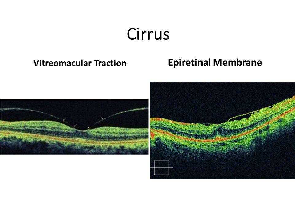 Cirrus Vitreomacular Traction Epiretinal Membrane