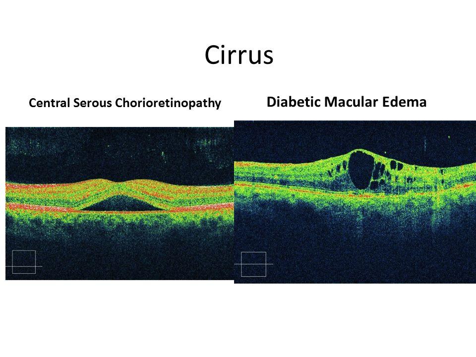 Cirrus Central Serous Chorioretinopathy Diabetic Macular Edema