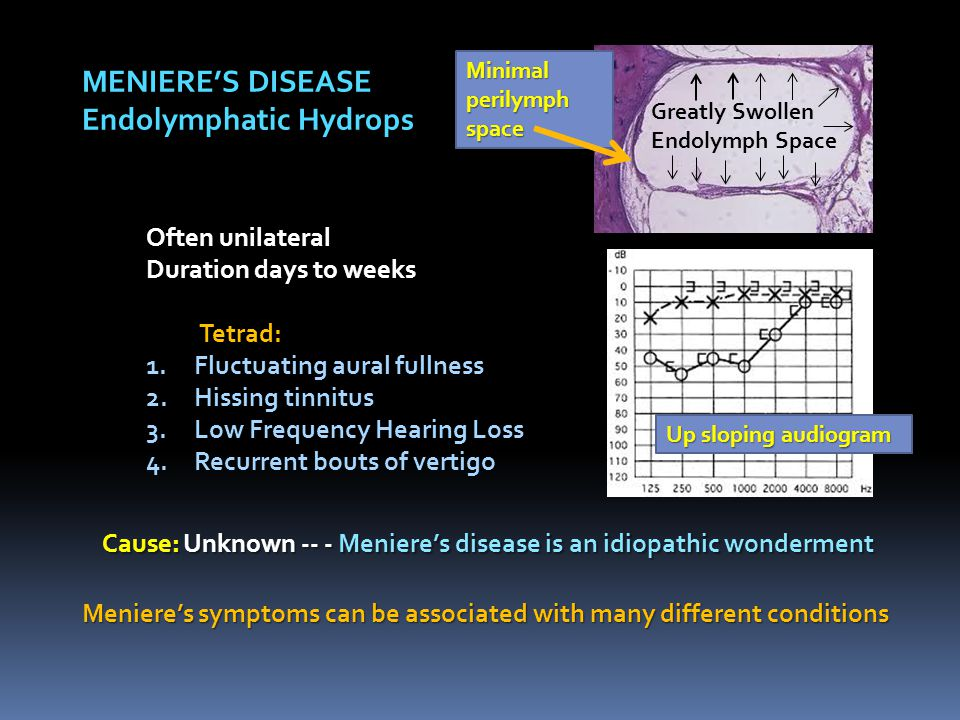 MENIERE'S DISEASE Endolymphatic Hydrops Often unilateral Duration days to weeks Tetrad: Tetrad: 1.Fluctuating aural fullness 2.Hissing tinnitus 3.Low