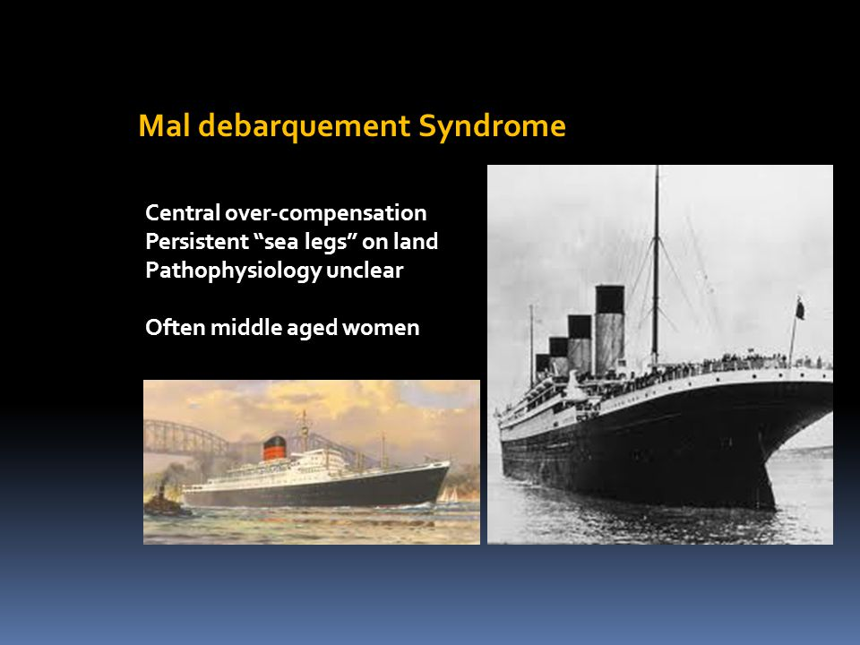 "Mal debarquement Syndrome Central over-compensation Persistent ""sea legs"" on land Pathophysiology unclear Often middle aged women"