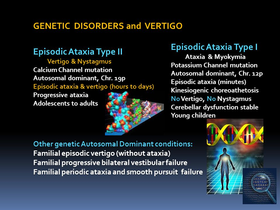 GENETIC DISORDERS and VERTIGO Episodic Ataxia Type II Vertigo & Nystagmus Vertigo & Nystagmus Calcium Channel mutation Autosomal dominant, Chr. 19p Ep