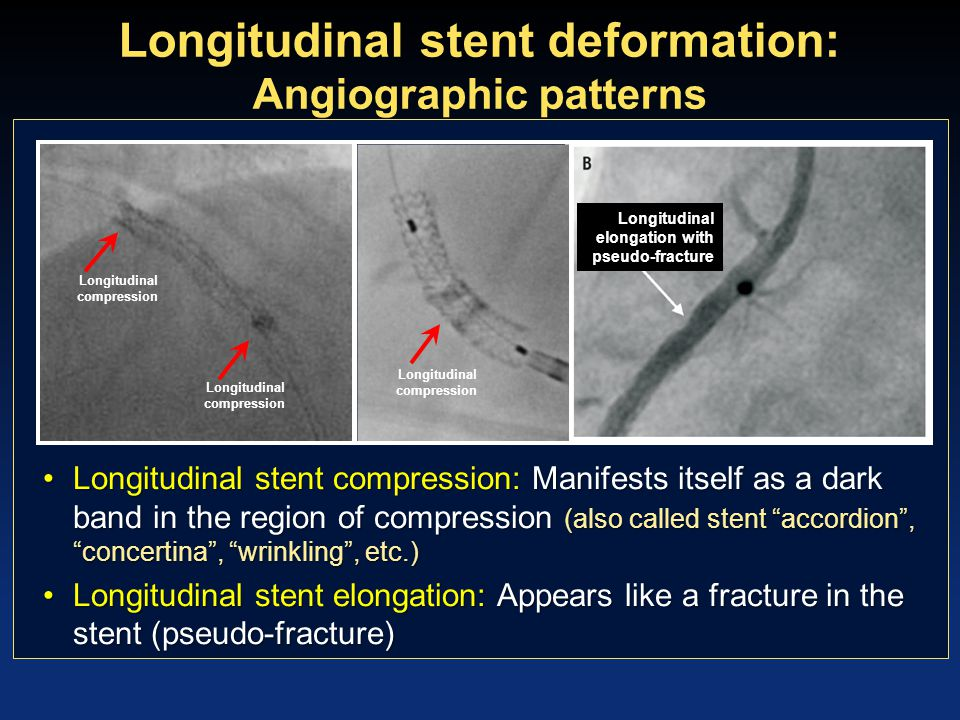 Longitudinal stent deformation: Angiographic patterns Longitudinal stent compression: Manifests itself as a dark band in the region of compression (al