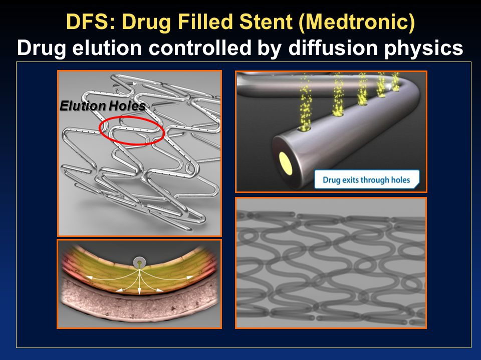 DFS: Drug Filled Stent (Medtronic) Drug elution controlled by diffusion physics Elution Holes