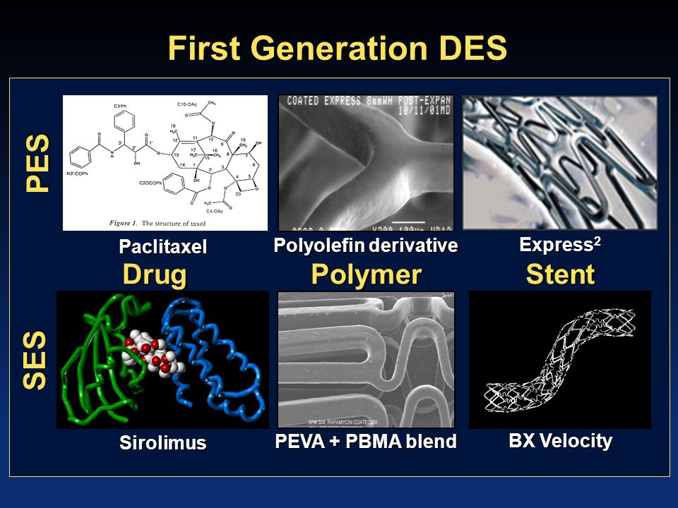 1 st Gen Drug-Eluting Stents The good, the bad, and the ugly.