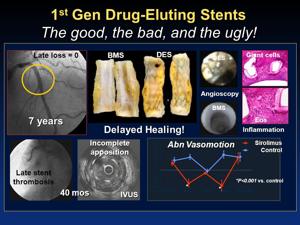 Conclusions: Current and future directions in stenting Current DES have appreciably improved safety and efficacy profiles in ACS and stable CAD compared to first generation devices By utilizing small amounts of a bioabsorbable polymer, polymer-free systems, or fully bioresorbable scaffolds, future generation DES will likely further reduce stent thrombosis and improve late outcomes