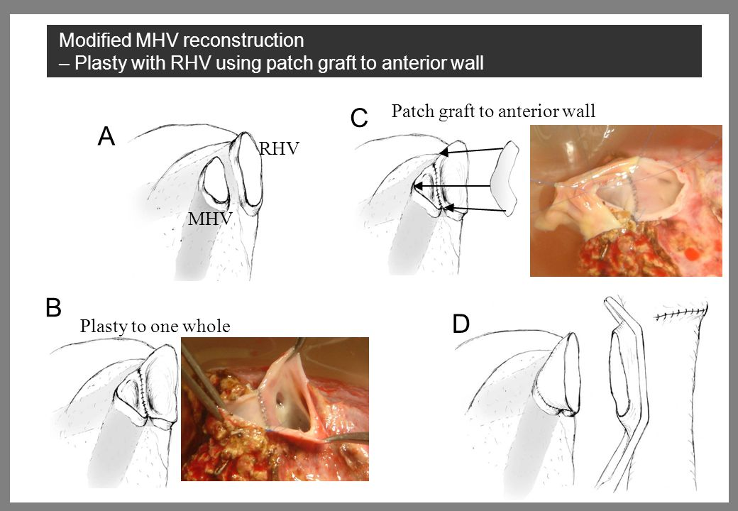 RHV MHV A Plasty to one whole B Patch graft to anterior wall C D Modified MHV reconstruction – Plasty with RHV using patch graft to anterior wall