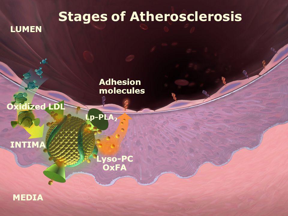 LUMEN MEDIA INTIMA Oxidized LDL Adhesion molecules Lyso-PC OxFA Lp-PLA 2 Stages of Atherosclerosis