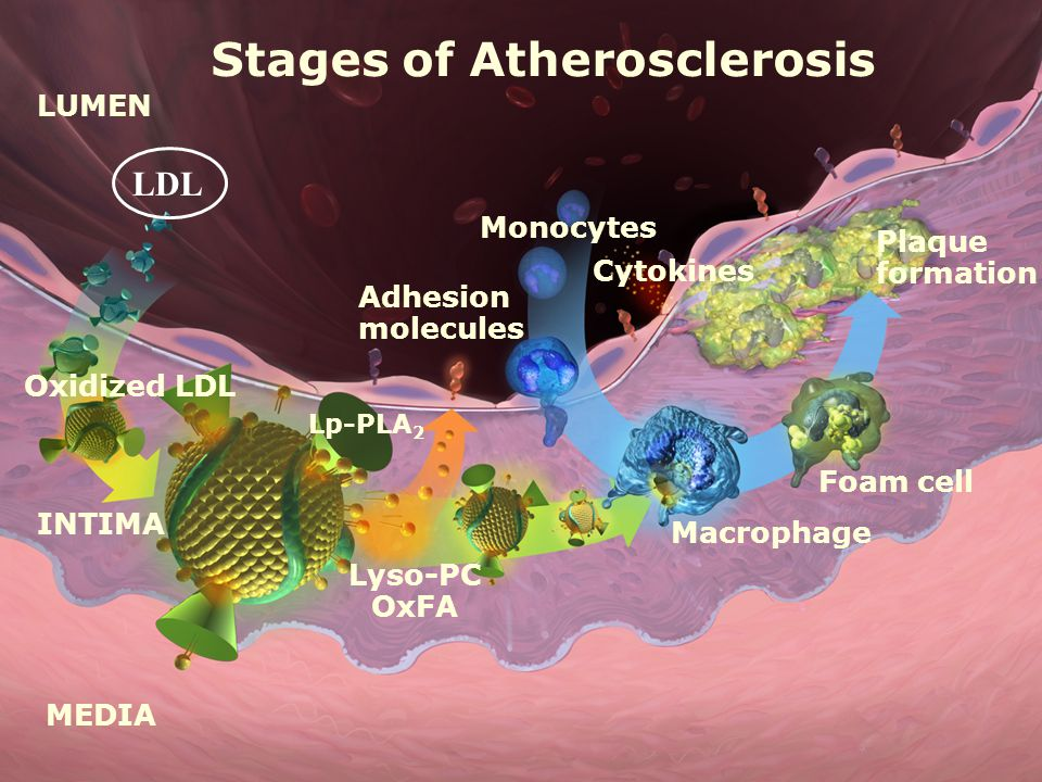 Cytokines Plaque formation Foam cell Monocytes Macrophage Stages of Atherosclerosis LUMEN MEDIA INTIMA Oxidized LDL Adhesion molecules Lyso-PC OxFA Lp