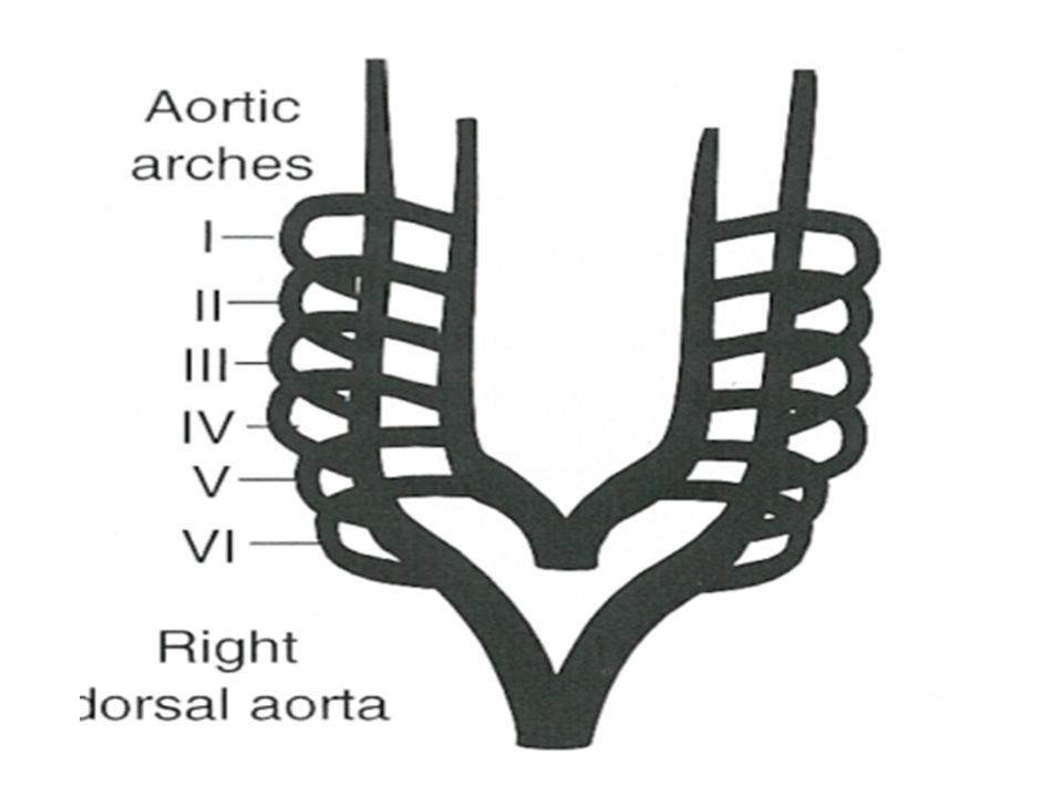 Sidedness of the arch Left and right arch refers to which bronchus is crossed by the arch Echo or angio-branching pattern of brachiocephalic vessels First arch vessel that contains carotid artery opposite side of arch Retroesophageal or isolated vessels-opp to side of arch MRI and CT-conclusive