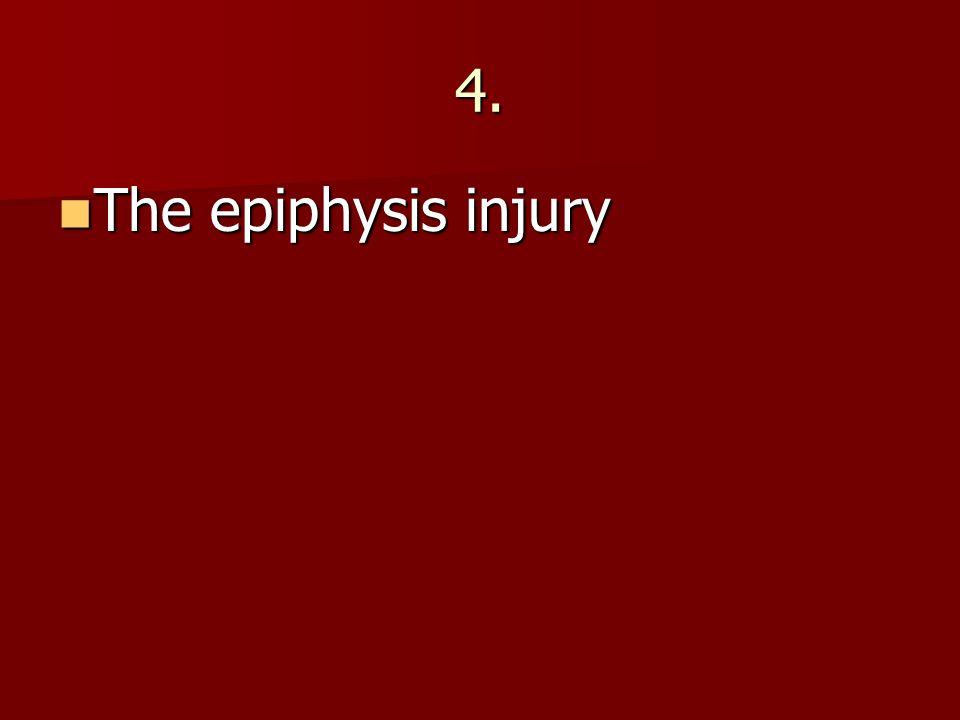 4. The epiphysis injury The epiphysis injury