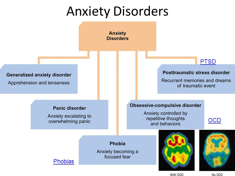 Anxiety Disorders OCD Phobias PTSD