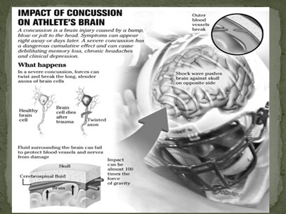 1 wrong answer suggests concussion