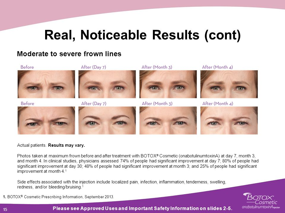 15 Real, Noticeable Results (cont) Please see Approved Uses and Important Safety Information on slides 2-5.